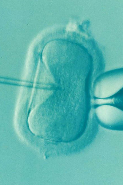 This Is What It's Really Like To Go Through IVF